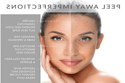 70% Glycolic Skin Face PROFESSIONAL