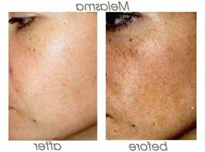 70% Acid Skin Peel UNBUFFERED - Acne - Wrinkles