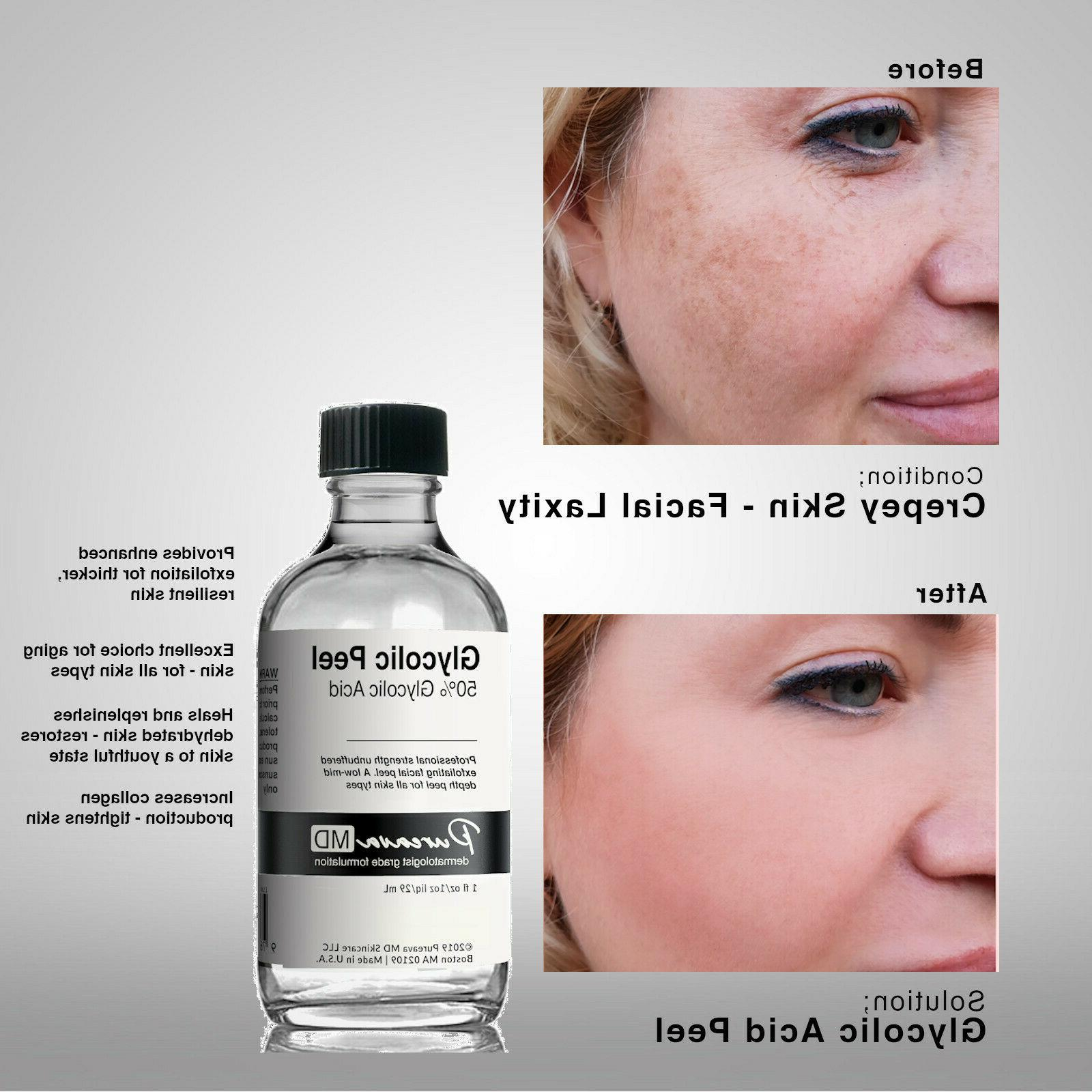 GLYCOLIC Chemical Skin Peel 10% 30% 50% + Neutralizer or