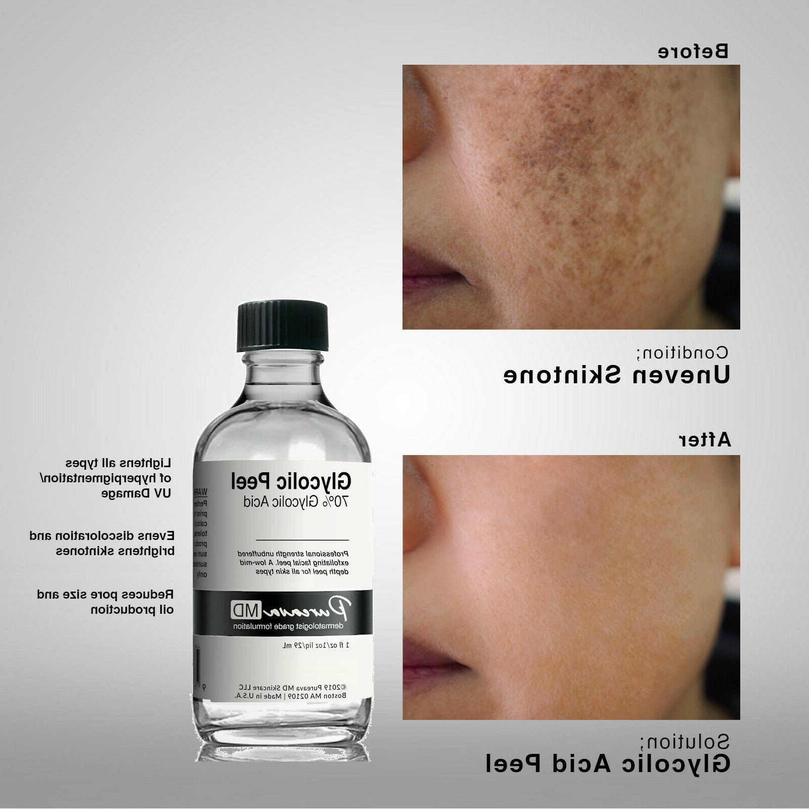 GLYCOLIC Skin Peel 50% or